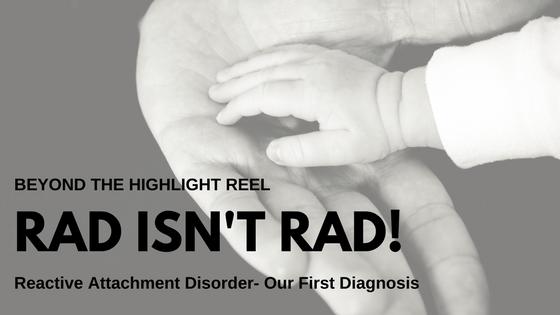 RAD Isn't Rad